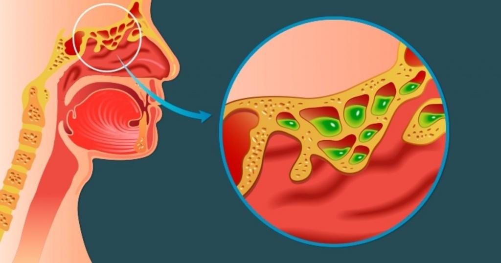 rinite e sinusite