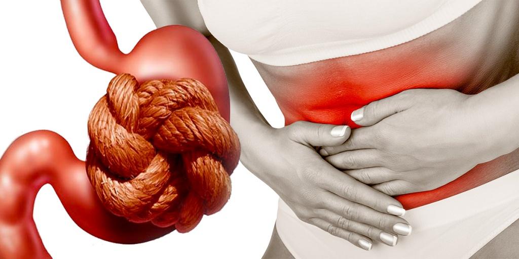alimentos que travam o intestino