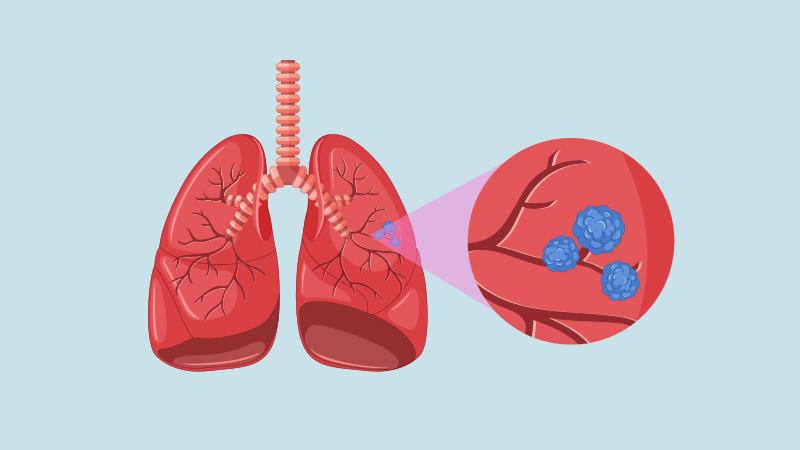 sinais câncer no pulmão