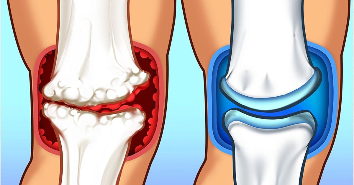 Ligamentos nos joelhos