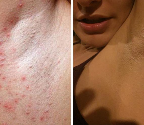 Alergias nas axilas