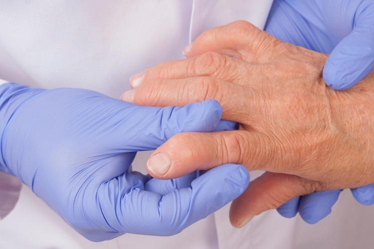 doença reumatica