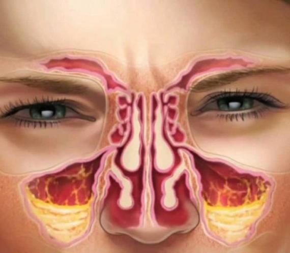 como tratar nariz entupido