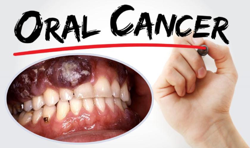 cancer de boca