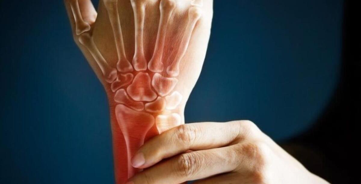 artrite reumatoide sintomas