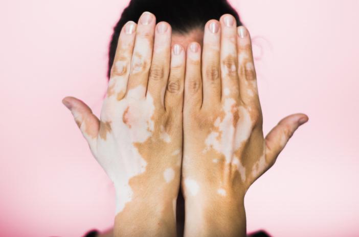 vitiligo tratamentos