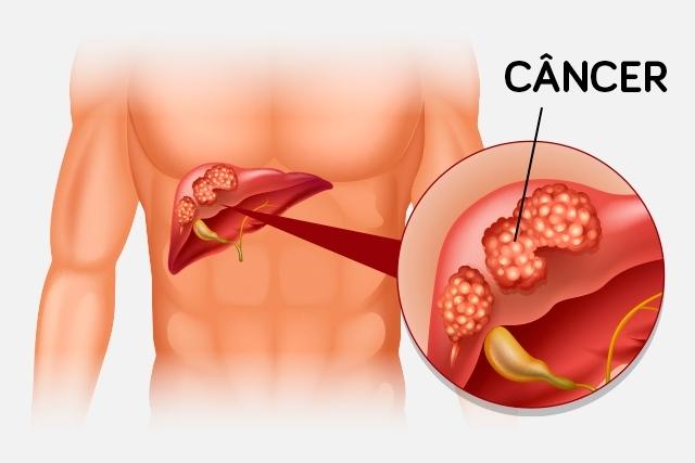 cancer-no-figado