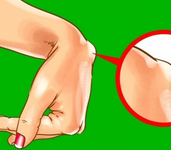 lesões no pulso