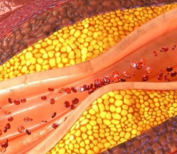 Artérias obstruídas