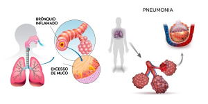 sintomas da pneumonia e da bronquite