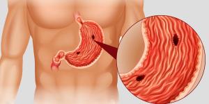 úlcera no estômago